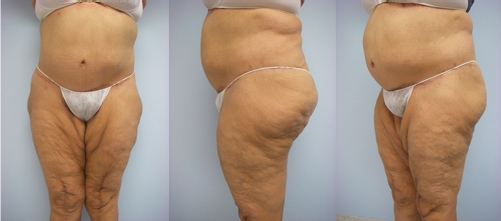10-Extended-Abdominoplasty-Tummy-Tuck-After.jpg