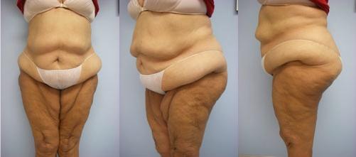 10-Extended-Abdominoplasty-Tummy-Tuck-Before.jpg