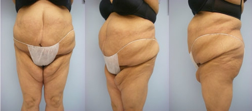 11-Extended-Abdominoplasty-Tummy-Tuck-After.jpg