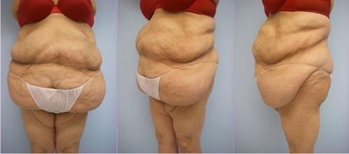 11-Extended-Abdominoplasty-Tummy-Tuck-Before.jpg