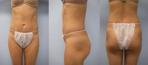 1-Laser-Assisted-Liposuction-After.jpg