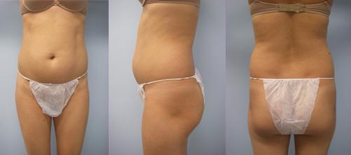 1-Laser-Assisted-Liposuction-Before.jpg