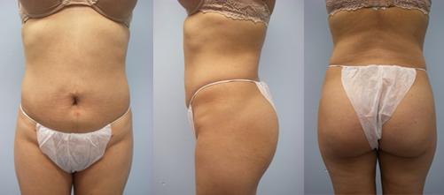 2-Laser-Assisted-Liposuction-After.jpg
