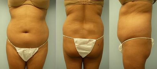 3-Laser-Assisted-Liposuction-Before.jpg