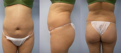 2-Laser-Assisted-Liposuction-Before.jpg