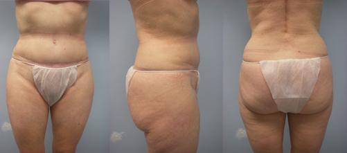 4-Laser-Assisted-Liposuction-Before.jpg