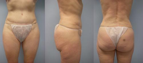 4-Laser-Assisted-Liposuction-After.jpg