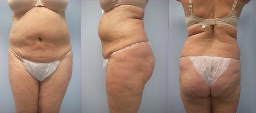 5-Laser-Assisted-Liposuction-Before.jpg