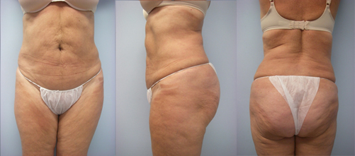5-Laser-Assisted-Liposuction-After.jpg