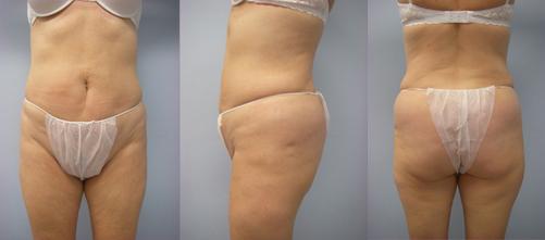 6-Laser-Assisted-Liposuction-After.jpg