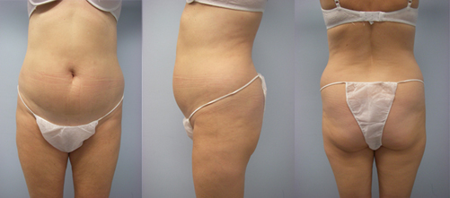 6-Laser-Assisted-Liposuction-Before.jpg