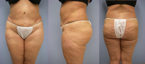 7-Laser-Assisted-Liposuction-After.jpg