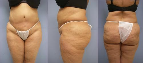 7-Laser-Assisted-Liposuction-Before.jpg