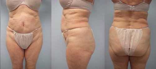 8-Laser-Assisted-Liposuction-After.jpg