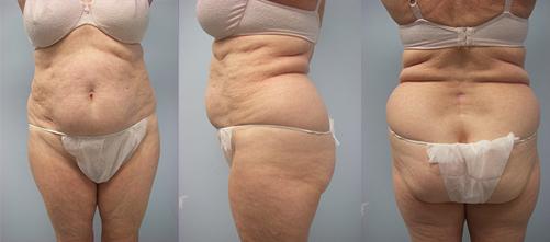 8-Laser-Assisted-Liposuction-Before.jpg