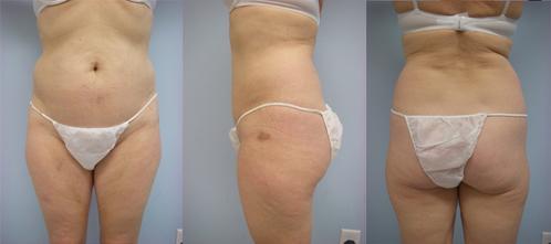 9-Laser-Assisted-Liposuction-Before.jpg