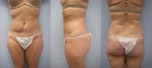 9-Laser-Assisted-Liposuction-After.jpg