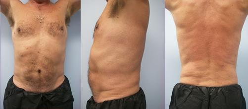 10-Laser-Assisted-Liposuction-After.jpg