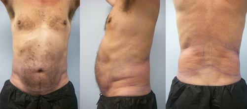 10-Laser-Assisted-Liposuction-Before.jpg