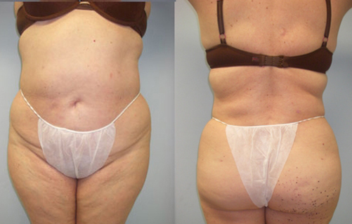 11-Laser-Assisted-Liposuction-After.jpg