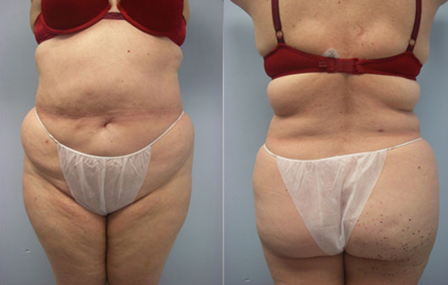 11-Laser-Assisted-Liposuction-Before.jpg