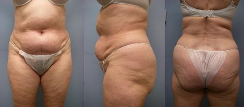 12-Laser-Assisted-Liposuction-Before.jpg