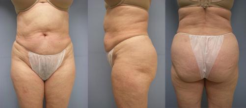 12-Laser-Assisted-Liposuction-After.jpg