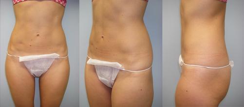 13-Laser-Assisted-Liposuction-After.jpg