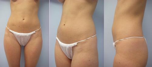 13-Laser-Assisted-Liposuction-Before.jpg