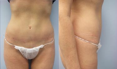 14-Laser-Assisted-Liposuction-After.jpg