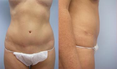 14-Laser-Assisted-Liposuction-Before.jpg