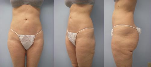 15-Laser-Assisted-Liposuction-After.jpg