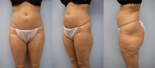 15-Laser-Assisted-Liposuction-Before.jpg