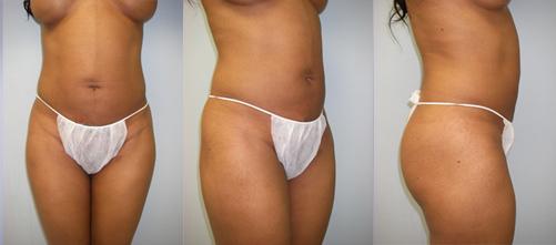 16-Laser-Assisted-Liposuction-After.jpg