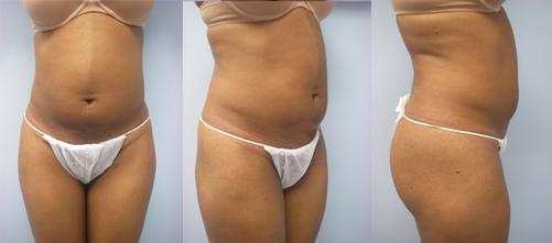 16-Laser-Assisted-Liposuction-Before.jpg