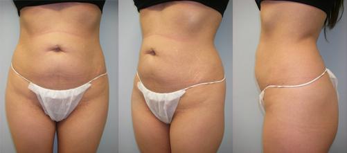 17-Laser-Assisted-Liposuction-Before.jpg