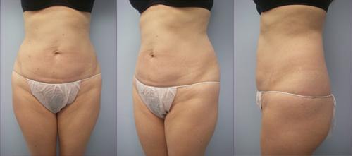 18-Laser-Assisted-Liposuction-After.jpg