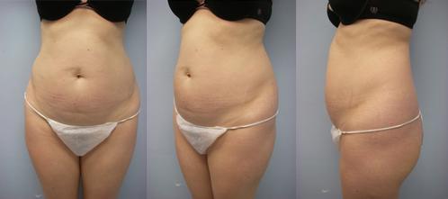 18-Laser-Assisted-Liposuction-Before.jpg
