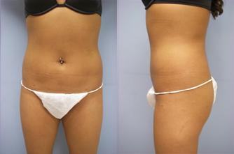 19-Laser-Assisted-Liposuction-After.jpg