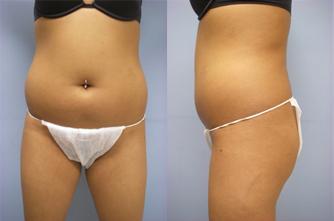 19-Laser-Assisted-Liposuction-Before.jpg