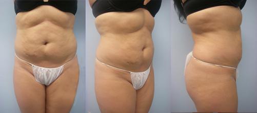 20-Laser-Assisted-Liposuction-Before.jpg