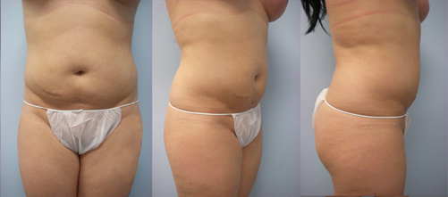 20-Laser-Assisted-Liposuction-After.jpg