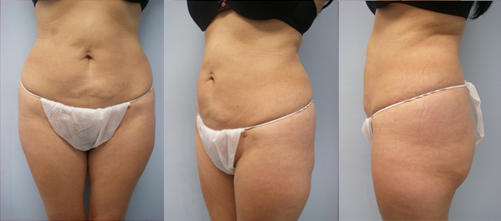 21-Laser-Assisted-Liposuction-After.jpg