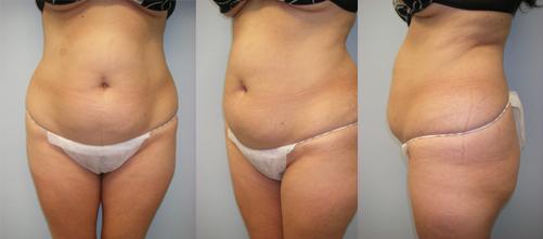 21-Laser-Assisted-Liposuction-Before.jpg