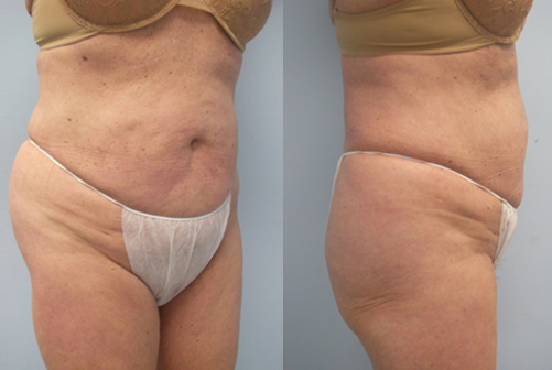 22-Laser-Assisted-Liposuction-After.jpg