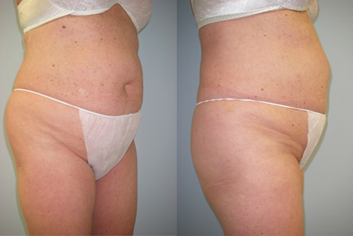 22-Laser-Assisted-Liposuction-Before.jpg