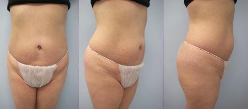 23-Laser-Assisted-Liposuction-After.jpg