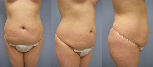 23-Laser-Assisted-Liposuction-Before.jpg