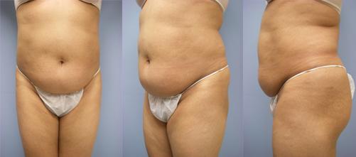 24-Laser-Assisted-Liposuction-Before.jpg