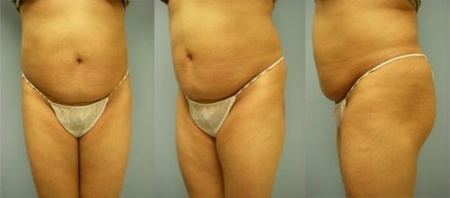 24-Laser-Assisted-Liposuction-After.jpg